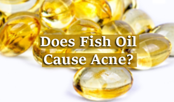 Does Fish Oil Cause Acne